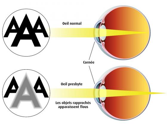 Presbytie vue réfraction des rayons